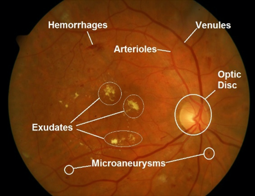 Explanation of diabetic retinopathy